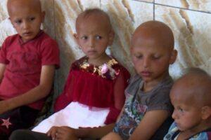 """ظاهرة الأطفال """"الصلعان"""" في العراق"""